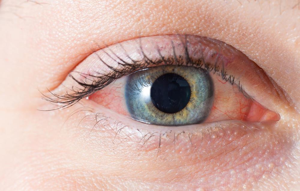 چرا حساسیت شما بدتر میشود؟ 4 دلیل اصلی تشدید آلرژی