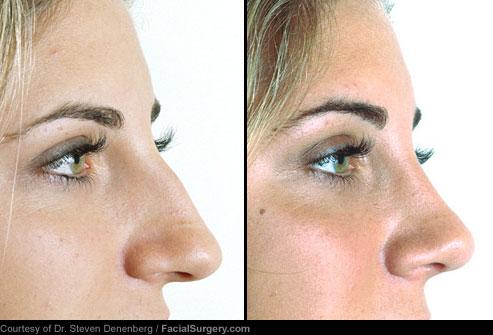 انواع جراحی زیبایی با عکس,جراحی بینی