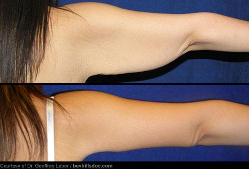 انواع جراحی زیبایی با عکس,لیفت بازو