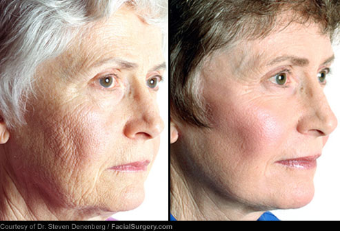انواع جراحی زیبایی با عکس,لیفت گردن