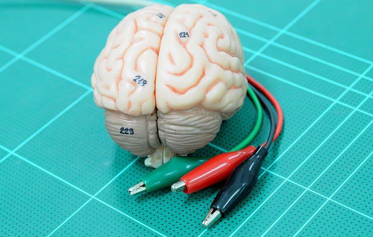تحریک عمیق مغزی