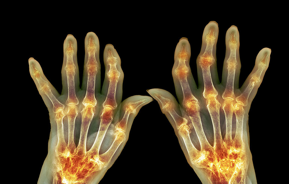 علائم آرتروز در زنان - 7 نشانه شگفت انگیز آرتروز