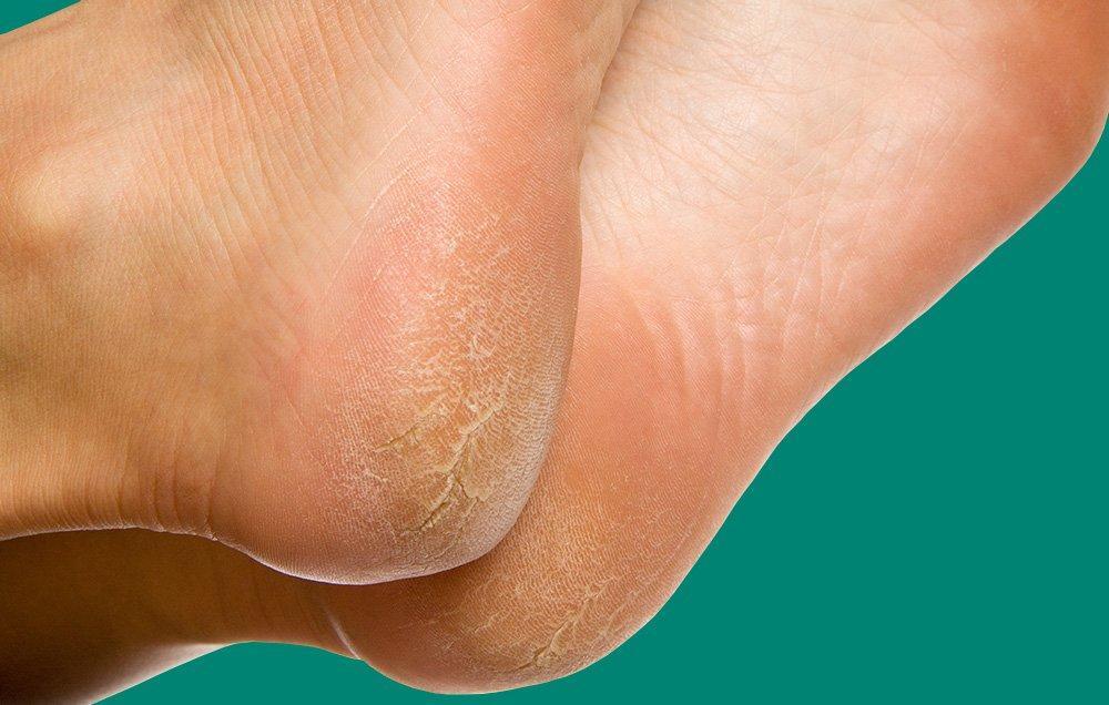 ترک پاها 7-reasons-your-feet-are-peeling,علت ترک کف پا