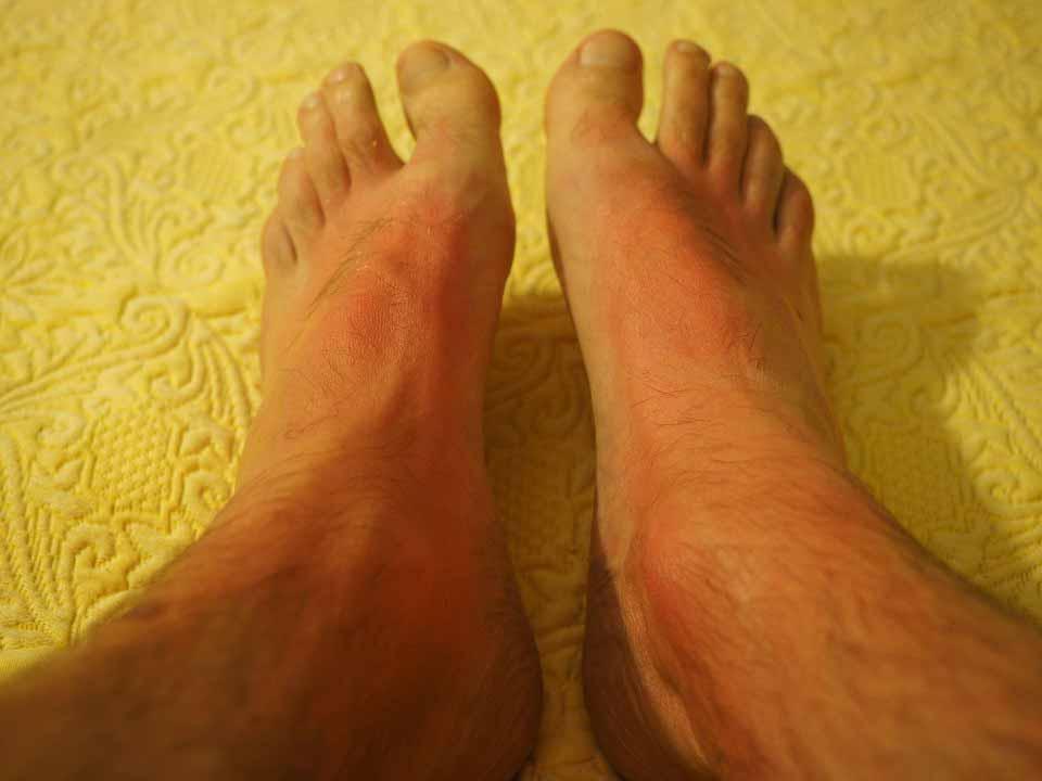 آفتاب سوختگی پاها