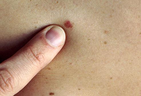 PRinc photo of skin cancer screening نمایش تصویری ضایعات پوستی پیش سرطانی و سرطان پوست سلامت