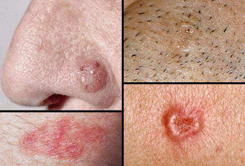 collage of basal cell carcinoma نمایش تصویری ضایعات پوستی پیش سرطانی و سرطان پوست سلامت