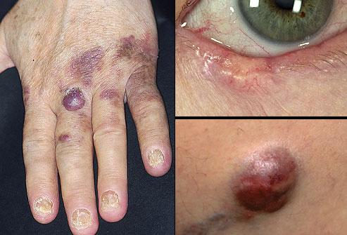 انواع سرطان پوست با عکس