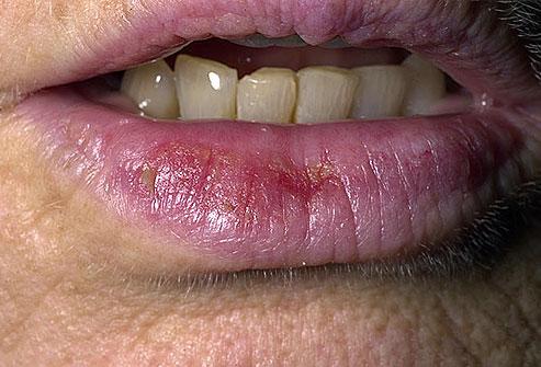 عکس سرطان پوست,dermnet_photo_of_actinic_cheilitis التهاب لب اکتینیک