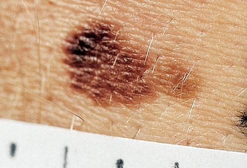 fitz photo of large atypical mole نمایش تصویری ضایعات پوستی پیش سرطانی و سرطان پوست سلامت