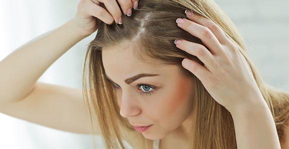انواع مختلف ریزش مو