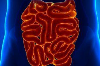 سندرم روده تحریک پذیر: نشانه ها، علل و درمان