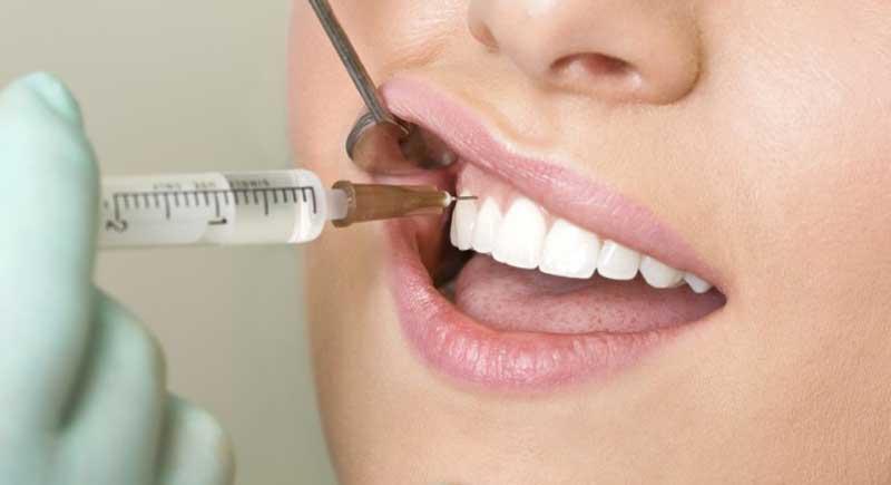 عفونت دندان Abscessed-Tooth