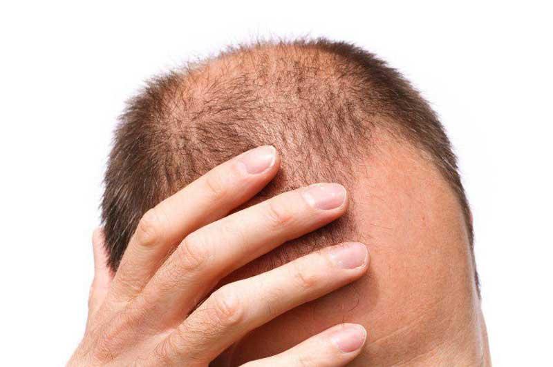ریزش مو hair5040