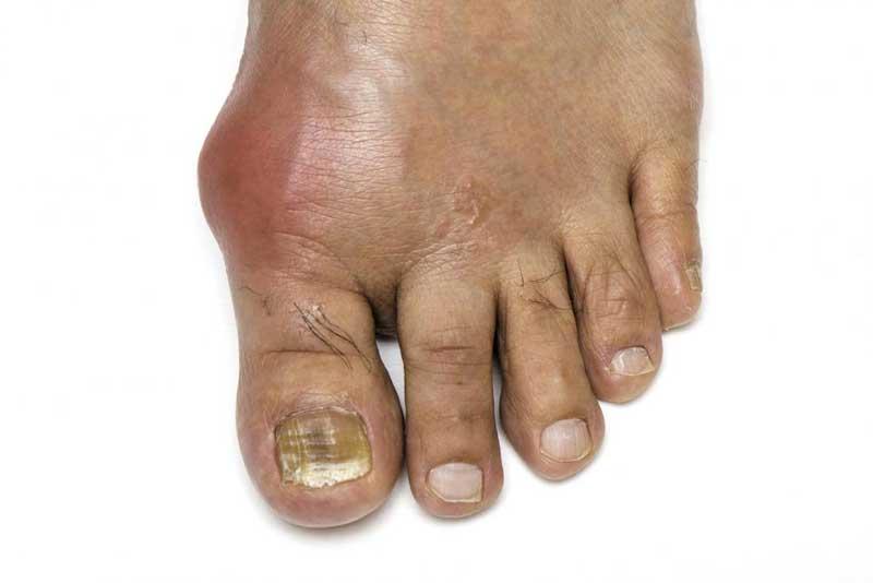 علائم نقرس در پاها
