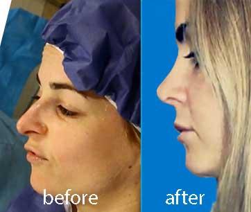 کایرا قبل و بعد از عمل