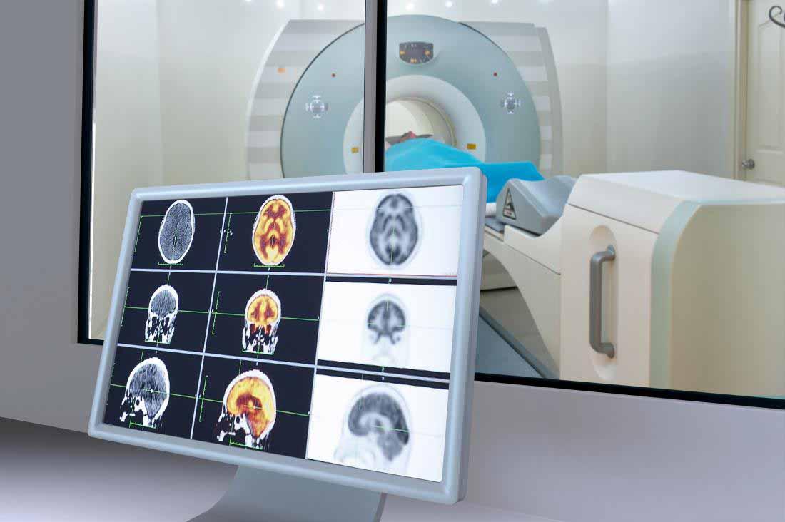 اسکن MRI از مغز