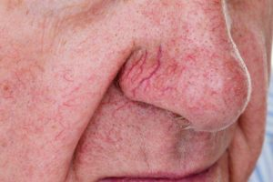 رگ های عنکبوتی روی بینی و راههای درمان آنها