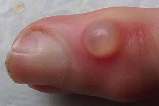 کیست موکوسی روی انگشت