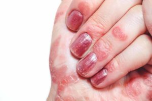دلیل خارش انگشتان دست و پا + راههای درمان