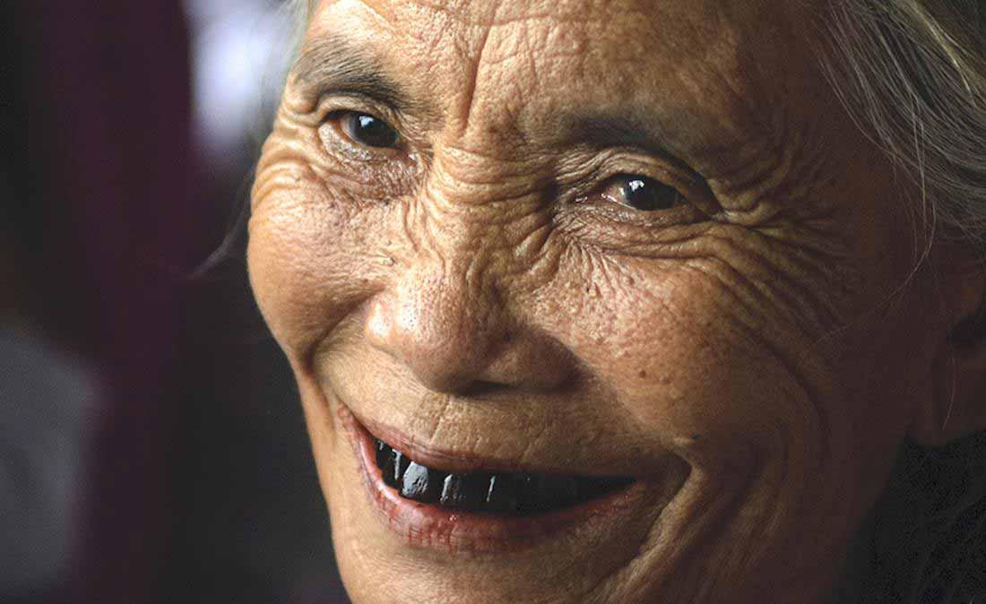 علت سیاه شدن دندان چیست؟