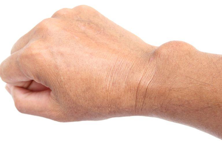 علت بی حسی دست ها چیست,کیست دست
