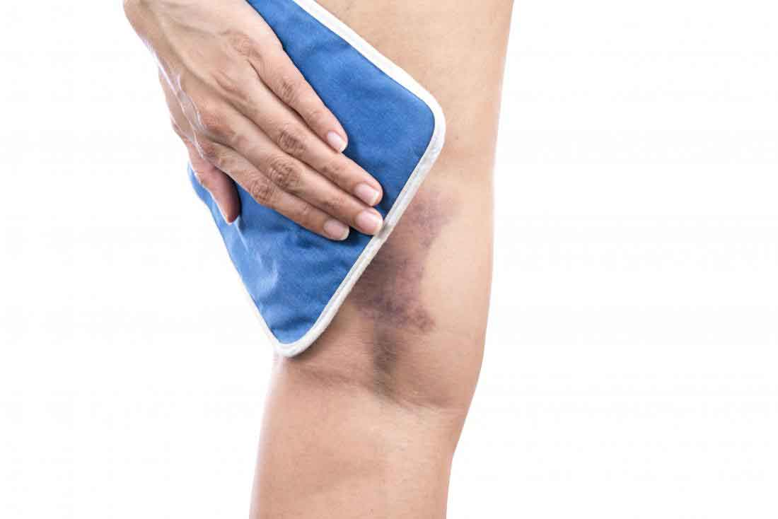 راههای درمان خونریزی زیرپوستی و کبودشدگی