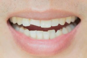انواع ترک خوردگی دندان و راههای درمان آن