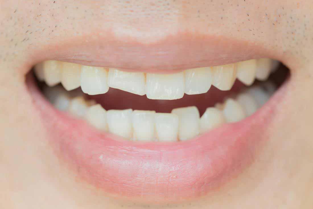 شکستگی دندان ها و راههای درمان آن