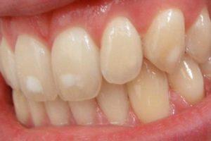 علت لکه های سفید روی دندان + ۱۱ راه درمان