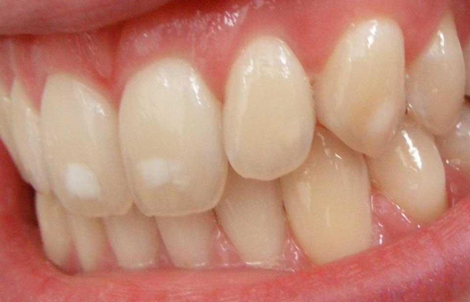 لکه سفید دندان