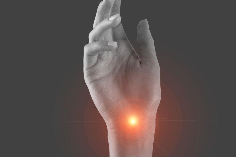 علت بی حسی دست ها چیست,سندرم تونل کارپال