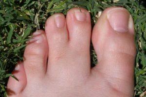 علت به هم چسبیدگی انگشتان پا + راه درمان سینداکتیلی