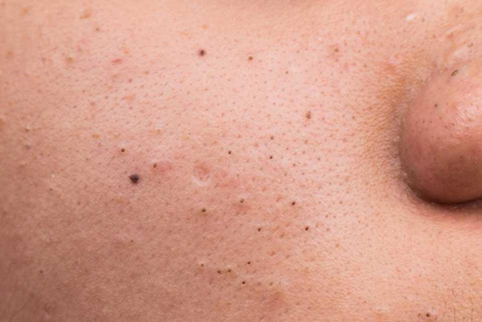 Blackheads انواع آکنه های پوستی + راه درمان آنها سلامت