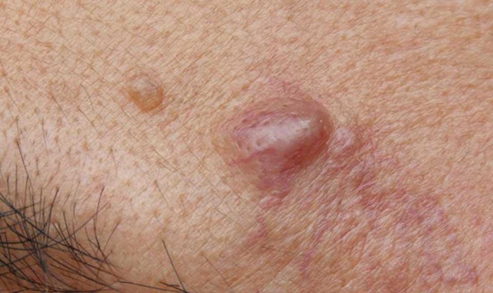 Cysts انواع آکنه های پوستی + راه درمان آنها سلامت