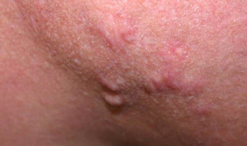 ندول های پوستی
