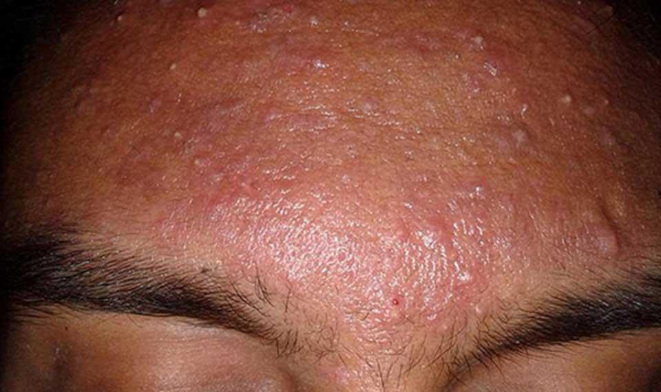 Pustules انواع آکنه های پوستی + راه درمان آنها سلامت