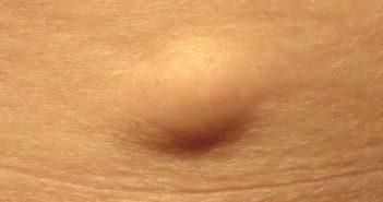 لیپوما چیست؟