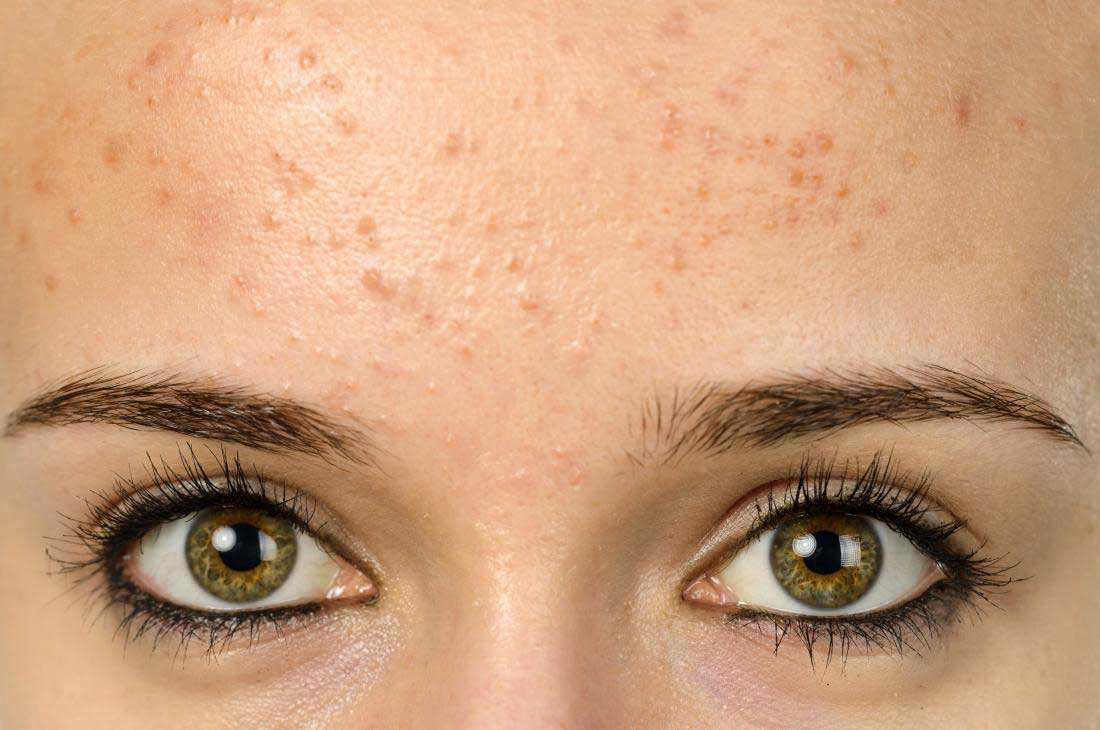 young woman with forehead acne انواع آکنه های پوستی + راه درمان آنها سلامت