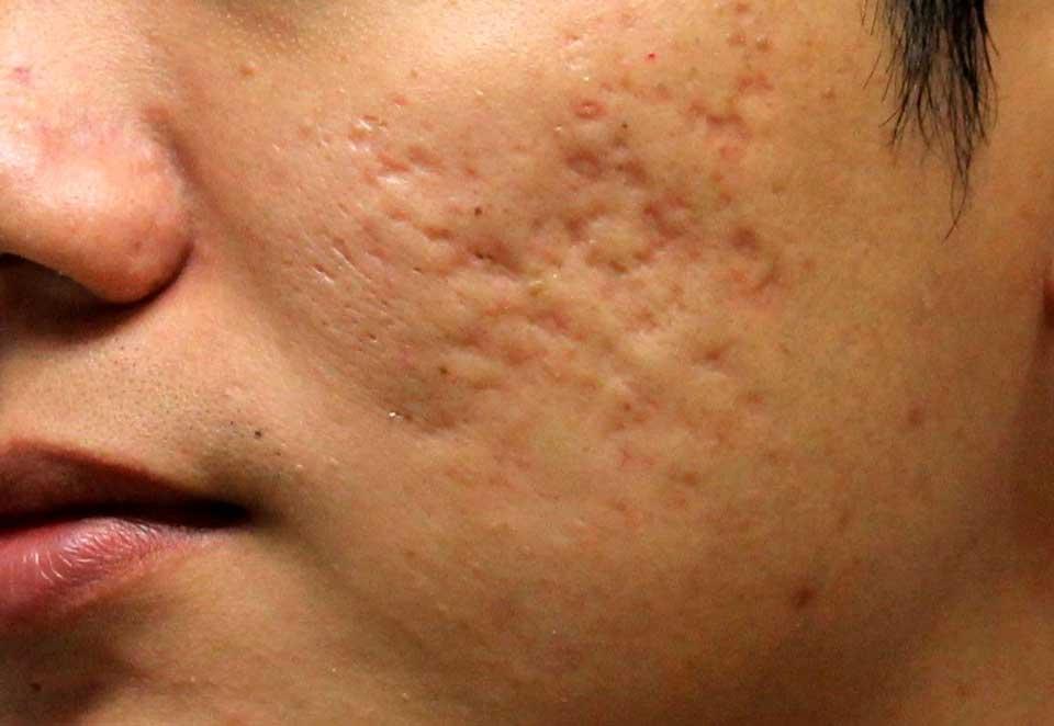 Atrophic scars چگونه جای زخمهای قدیمی را از بین ببریم؟ درمان انواع جای زخم سلامت