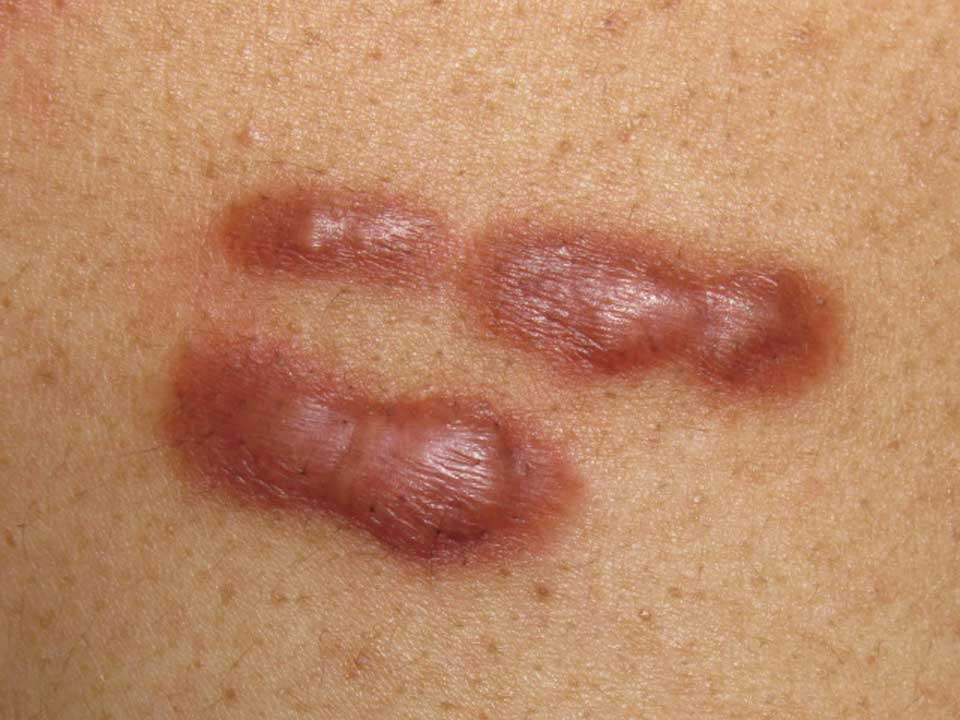 Keloids چگونه جای زخمهای قدیمی را از بین ببریم؟ درمان انواع جای زخم سلامت