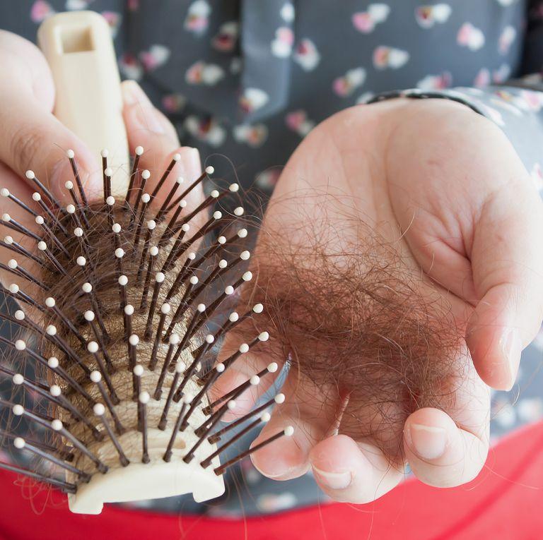 نشانه های مشکلات تیروئیدی,علائم اختلال غده تیروئیدریزش مو