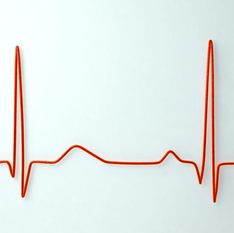 نشانه های مشکلات تیروئیدی,علائم اختلال غده تیروئیدتپش قلب
