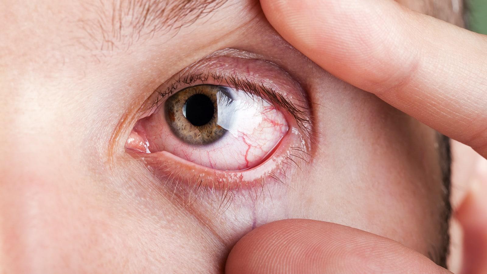 دلیل درد چشم چیست؟