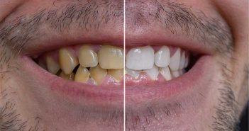 سفید کردن دندان های زرد