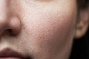 بوی بیماری