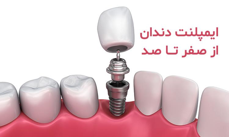 ایمپلنت دندان از صفر تا صد