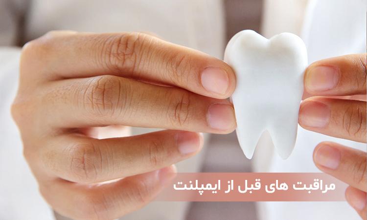 مراقبت های قبل از ایمپلنت دندان