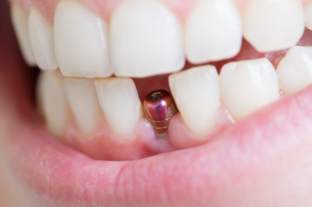 کاشت ایمپلنت دندان برای دندانهای جلو