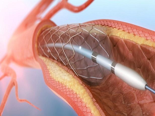 نحوه انجام آنژیوگرافی قلب
