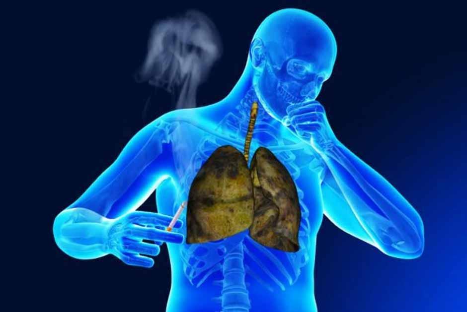 بیماری تنفسی